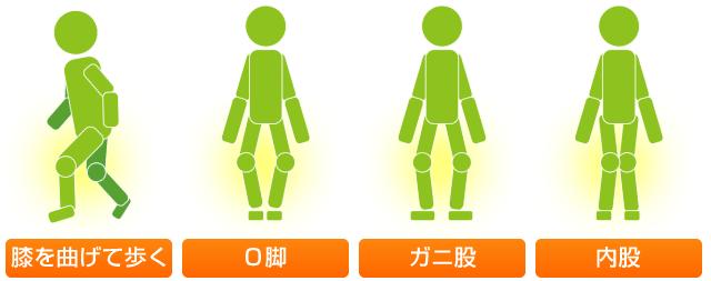 膝のタイプ 膝を曲げて歩く、O脚、ガニ股、内股