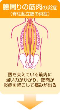 腰周りの筋肉の炎症